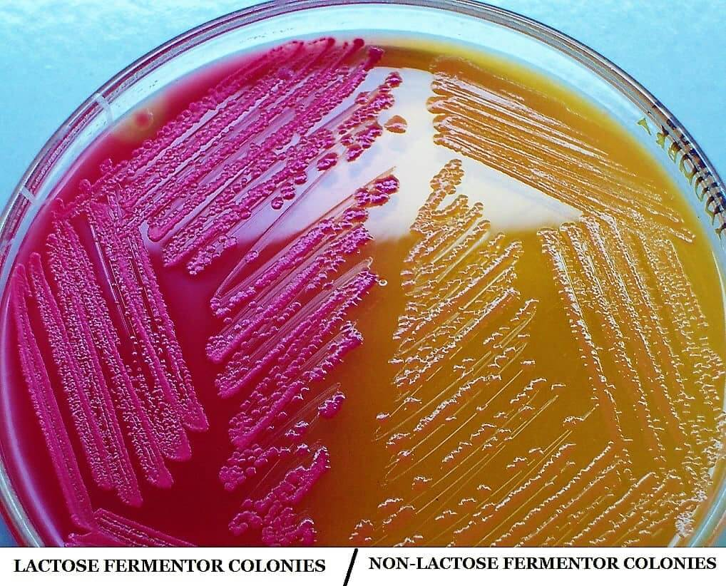 MacConkey Agar medium - macconkey agar media - preparation of macconkey agar medium - what is macconkey agar - lactose and non lactose fermentor colonies on macconkey agar