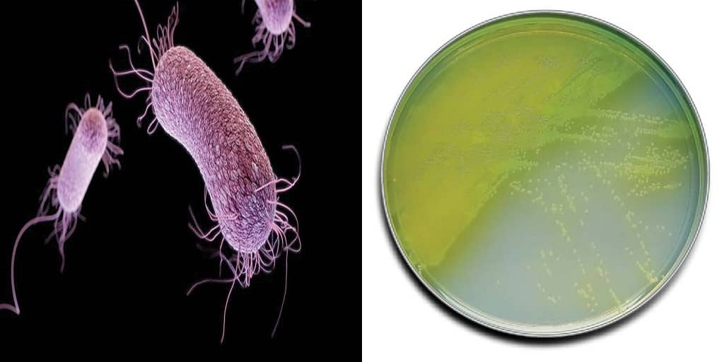 Morphology of pseudomonas aeruginosa - culture characteristics of pseudomonas aeruginosa - what is pseudomonas aeruginosa - p aeruginosa on blood agar - macconkey agar - cetrimide agar