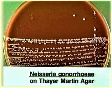 Neisseria gonorrhoeae on thayer martin medium