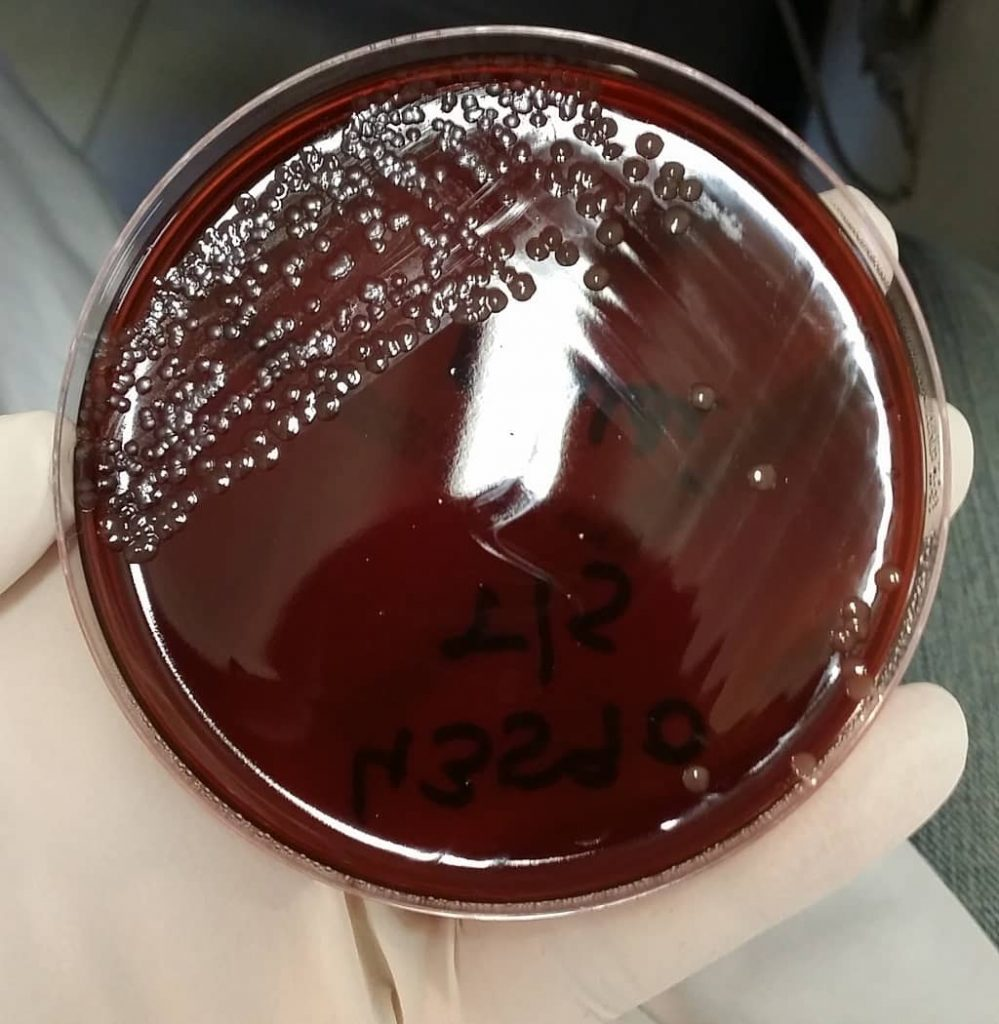 Neisseria meningitidis on new york city medium - menningococcus on new york city medium