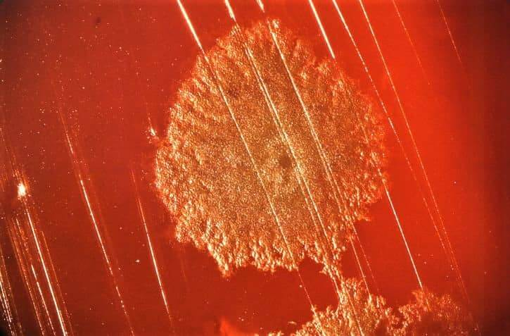colony of clostridium botulinum on blood agar medium - clostridium botulinum on blood agar medium (bam)