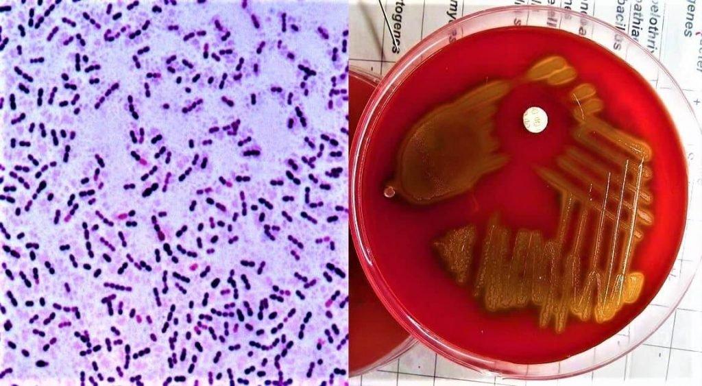 morphology of streptococcus pneumoniae - culture characteristics of streptococcus pneumoniae - what are the culture characters of streptococcus pneumoniae