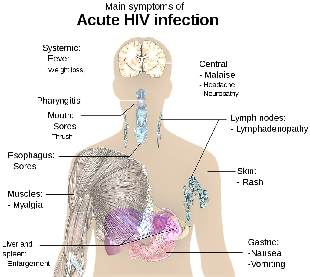 HUMAN IMMUNODEFICIENCY VIRUS - HIV - SYMPTOMS