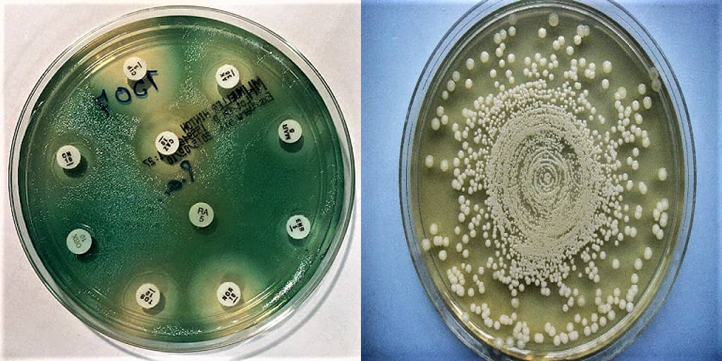 mueller hinton agar - preparation of mueller hinton agar medium - preparation of mha - mha preparation - how to prepare mha media - what is mha medium