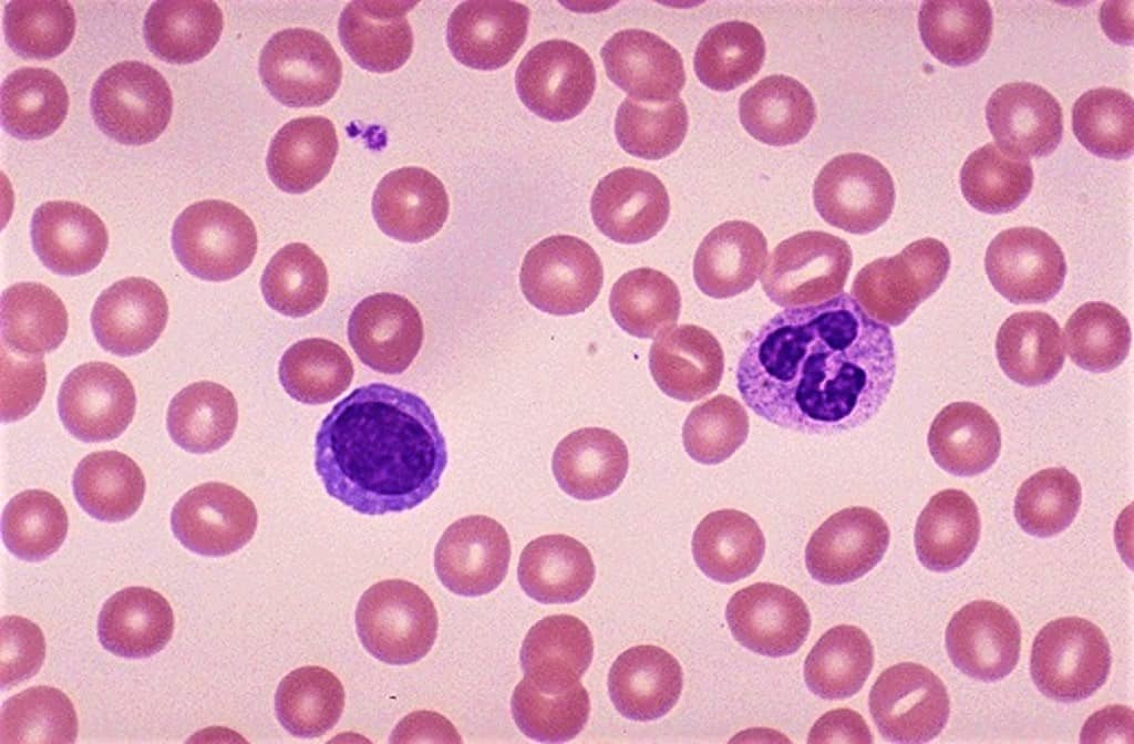 normal blood smear - stained with giemsa stain - normal blood film showing normal blood cells - giemsa staining protocol - procedure of giemsa stain - giemsa stain principle