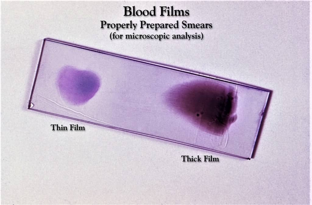 thin and thick blood smear - thin and thick blood film - thin and thick smear on same slide - both types of smear on one slide