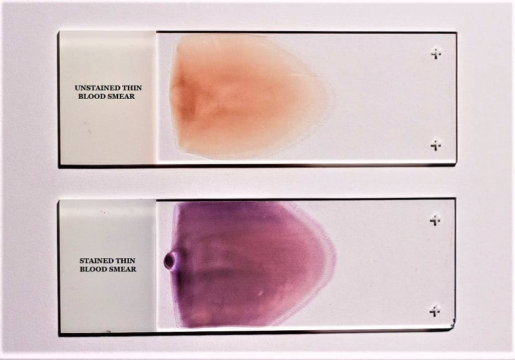 thin blood smear - stained thin blood smear - unstained thin blood smear