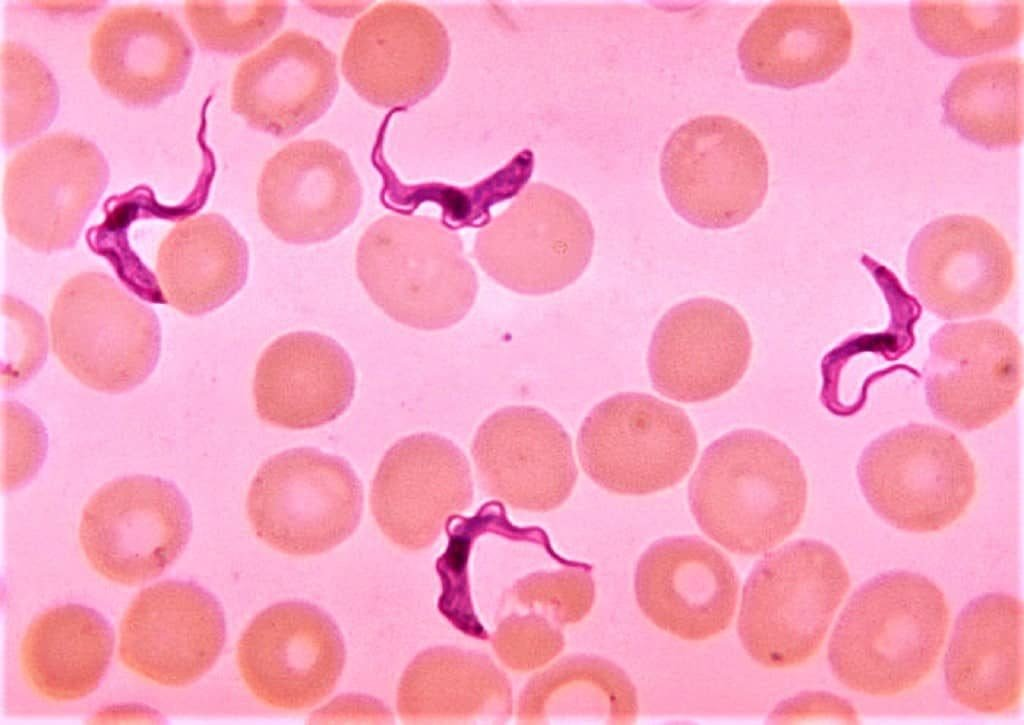 trypanosoma species in blood smear - thick blood smear showing parasite - thick blood film showing trypanosoma species