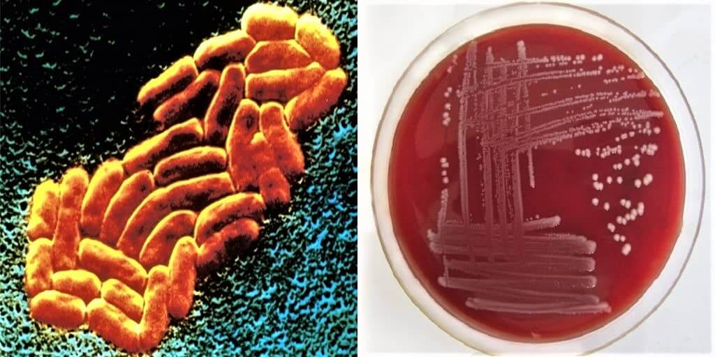 Morphology of Klebsiella pneumoniae - Culture characteristics of Klebsiella pneumoniae - klebsiella morphology - shape - size - arrangement - culture growth