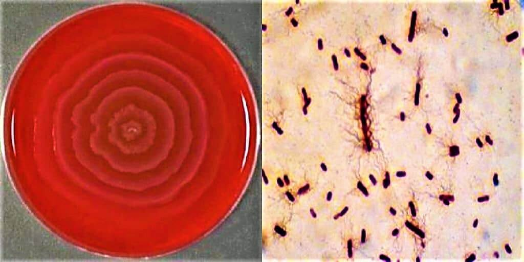 Morphology of proteus vulgaris - Culture characteristics of proteus vulgaris - Cultural characteristics of proteus vulgaris - proteus vulgaris on blood agar - proteus vulagaris on macconkey agar medium