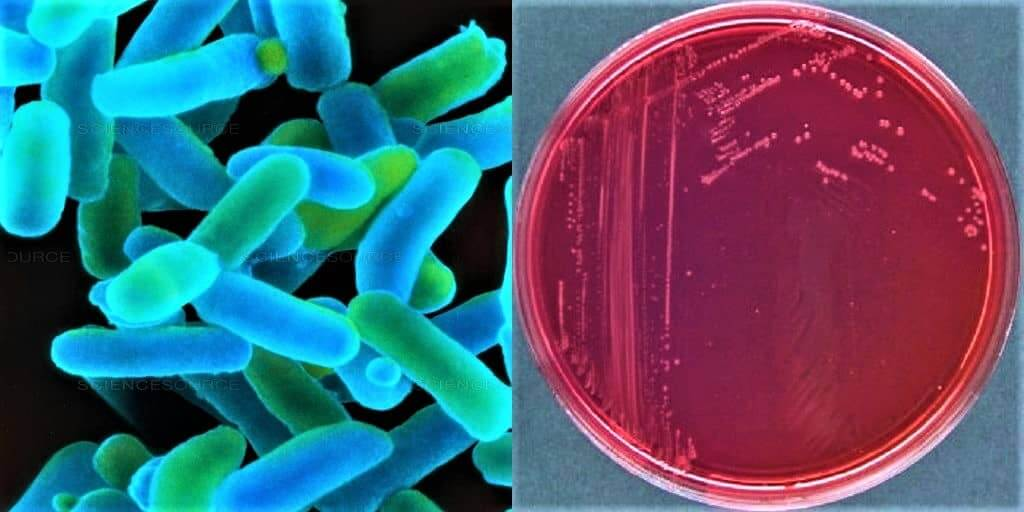 Morphology of shigella dysenteriae - culture characteristics of shigella dysenteriae - culture of shigella dysenteriae - growth of shigella dysenteriae