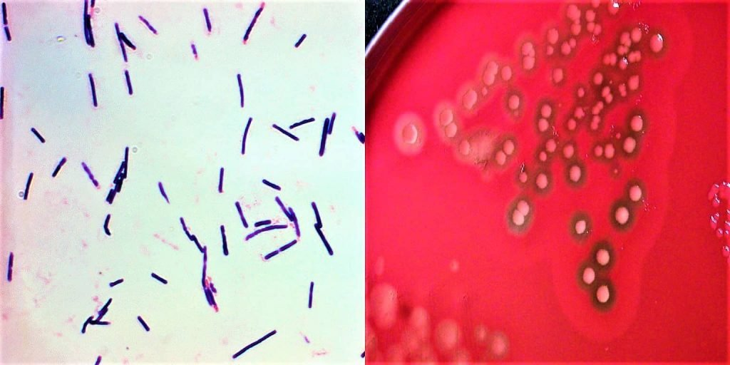 clostridium perfringens - morphology of clostridium perfringens - culture characteristics of clostridium perfringens - what is clostridium perfringens
