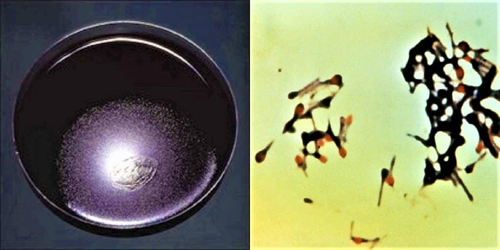 clostridium tetani on blood agar - morphology of clostridium tetani - culture characteristics of clostridium tetani - morphology & culture characters of clostridium tetani