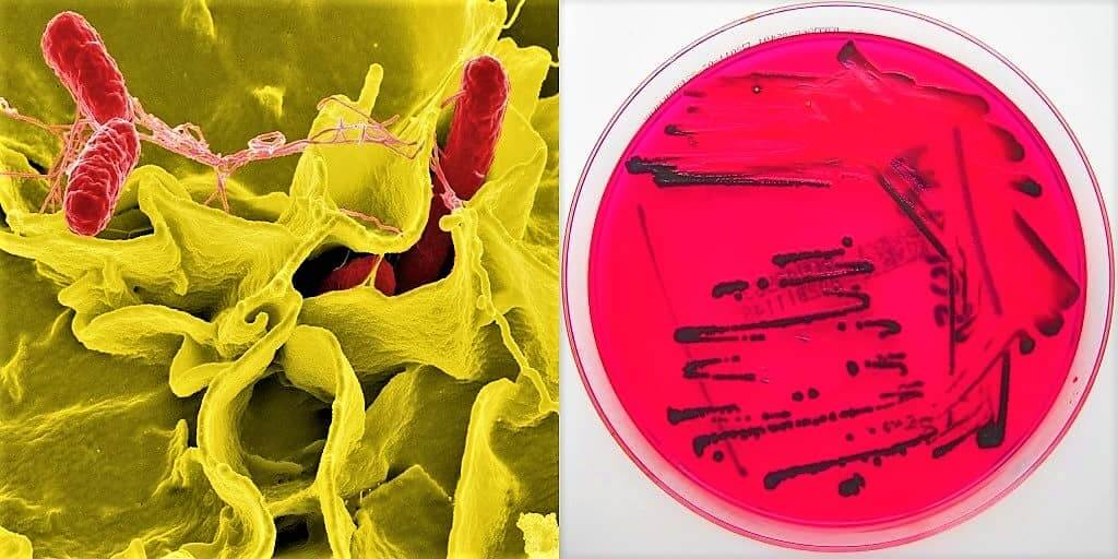 morphology of salmonella typhi - culture characteristics of salmonella typhi - culture requirements of salmonella typhi
