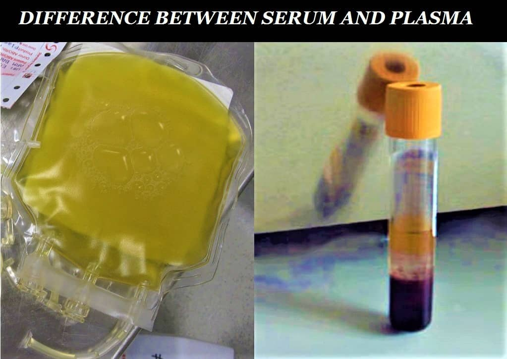 difference between serum and plasma - what is serim - what is plasma - how to distinguish plasma and serum - serum vs plasma - difference between