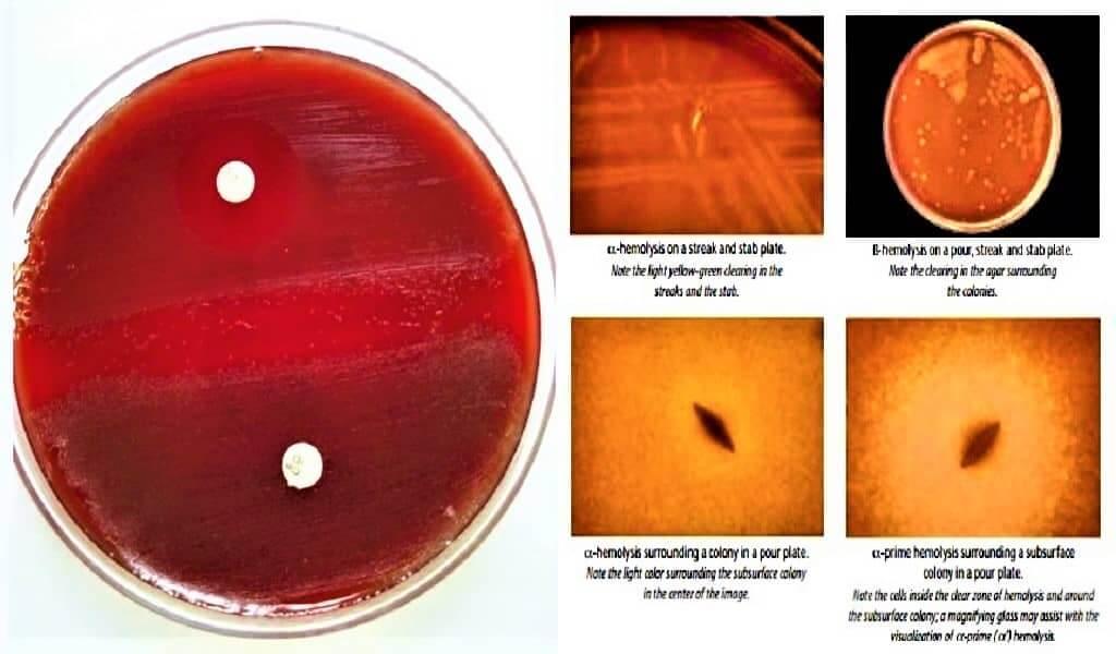 blood agar medium - preparation of blood agar - bam - blood agar medium composition