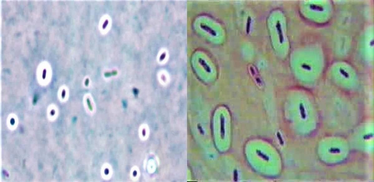 capsule staining - capsule staining technique - what is capsule staining - india ink - nigrosine - anthony method