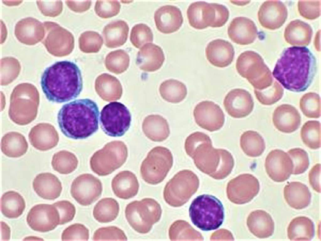 chronic lymphoid leukemia - chronic lymphocytic leukemia - quiz on cll - a quiz on chronic lymphocytic leukemia - cll