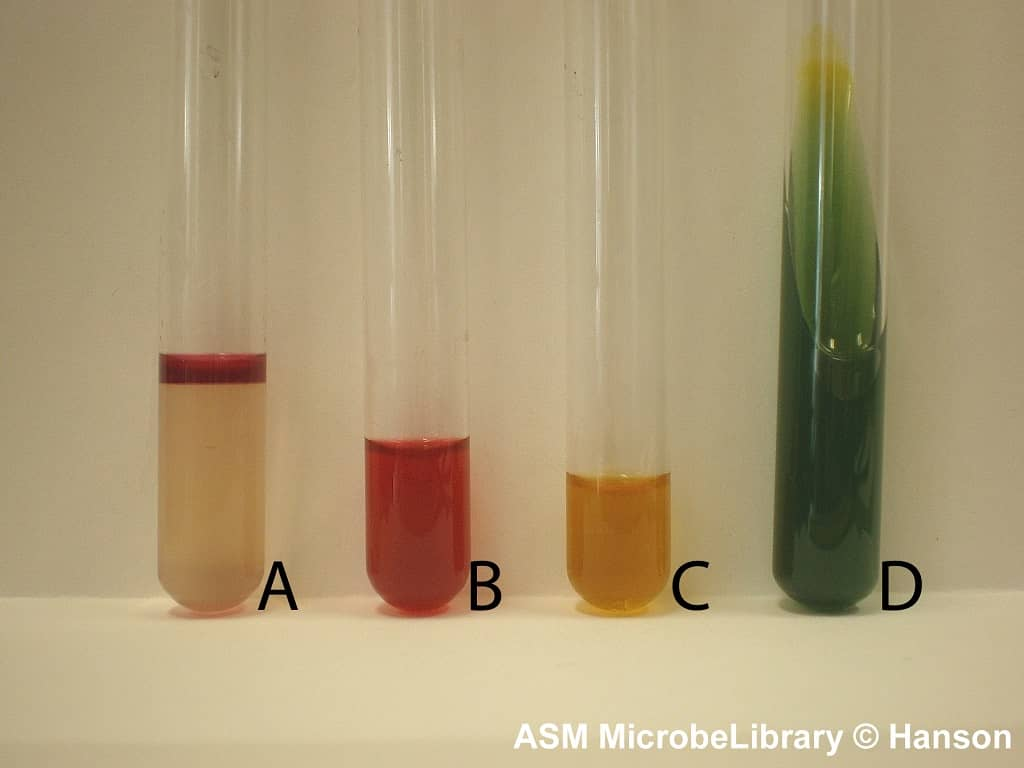 IMViC test for Escherichia coli - biochemical test for e coli - imvic for e coli