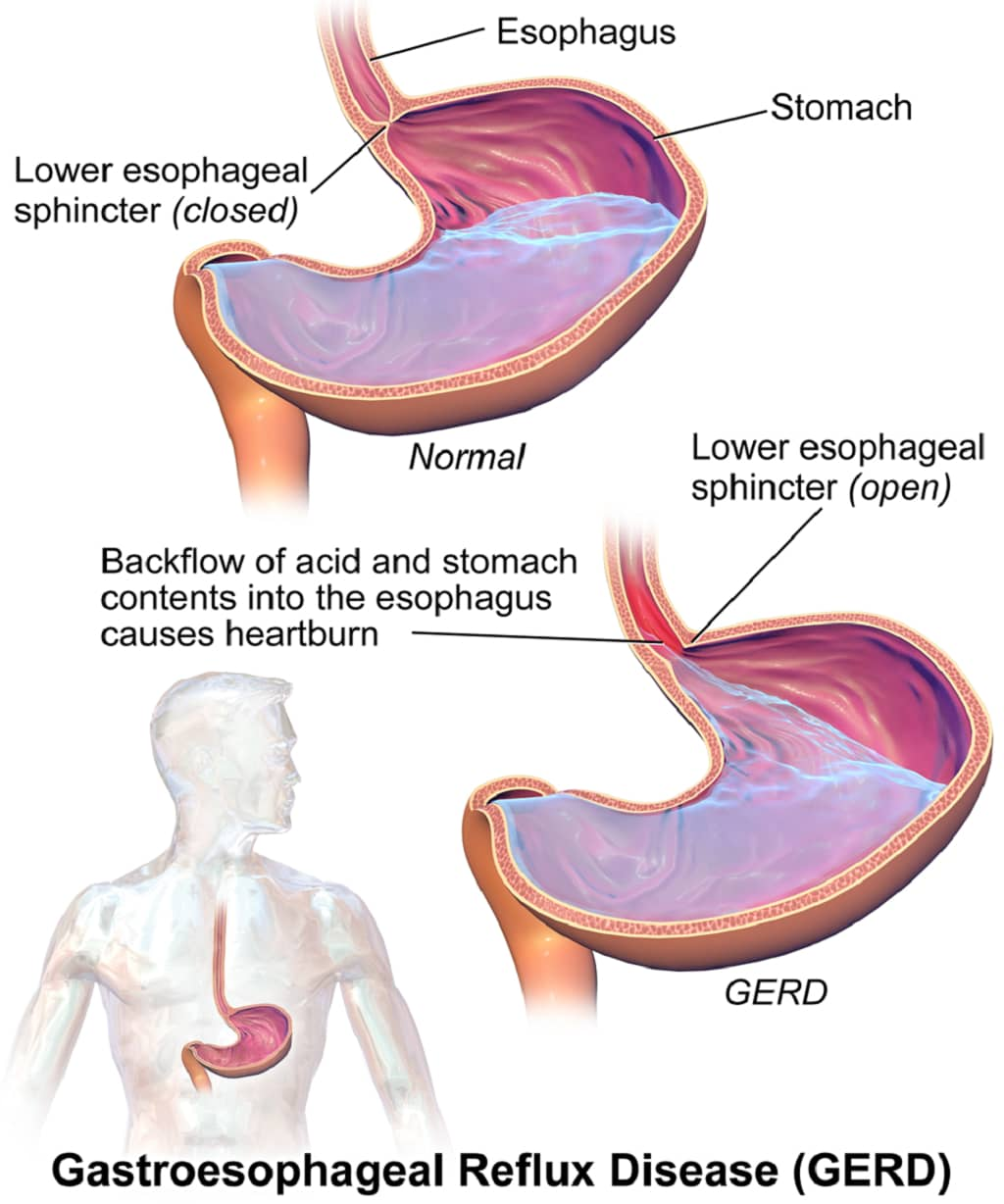 What Are The Symptoms Of Gastroesophageal Reflux Disease