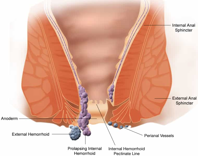 Hemorrhoid - treatment of piles - treatment of hemorrhoids - How laser surgery is a proven treatment for Piles or Hemorrhoids