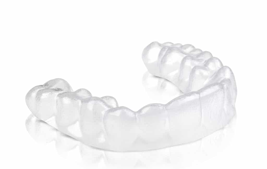 clear aligner - clear braces - Is it possible to straighten your teeth without braces - yes oral treatment without braces
