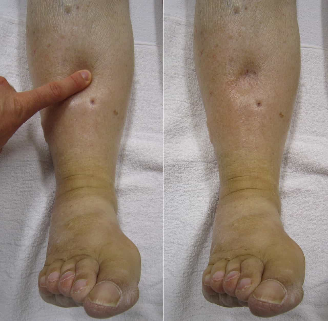 What is Edema How to treat Lymphedema